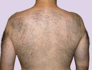 Laser Body Hair Removal Back Chest Neck Hair Ideal Image