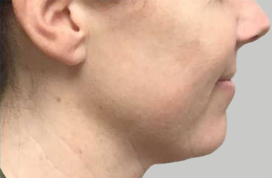 side of face after BroadBand Light Therapy