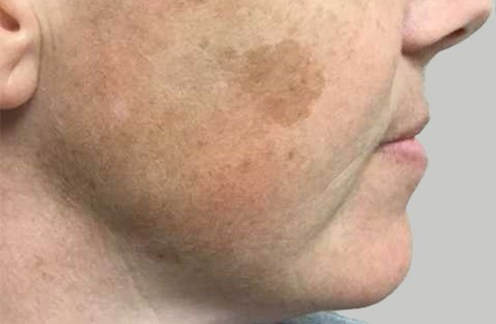 side of face with age spots before BroadBand Light Therapy