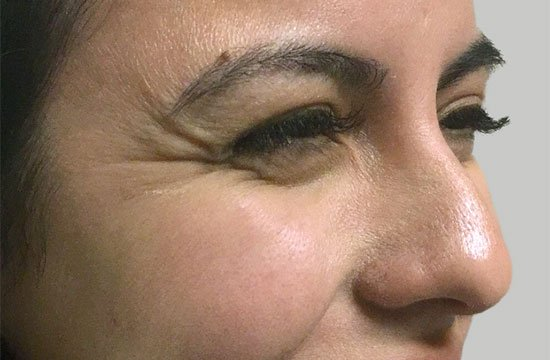 woman's eyes with wrinkles