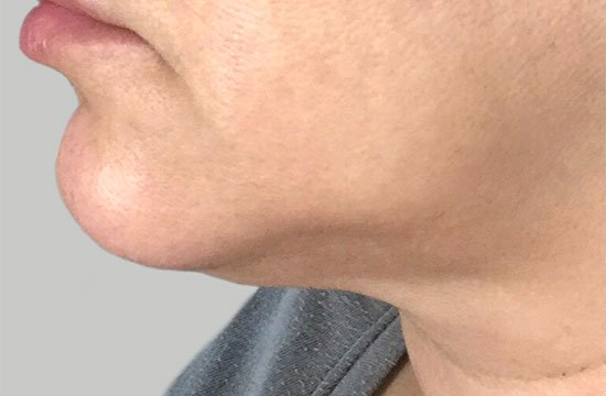 chin after coolsculpting