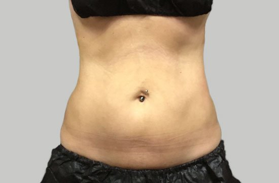 coolsculpting after photo belly