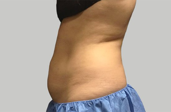 belly after CoolSculpting