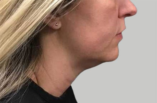 side of face after CoolSculpting
