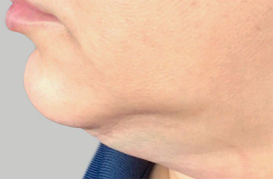 chin before coolsculpting
