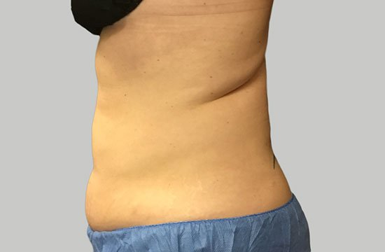 belly before CoolSculpting