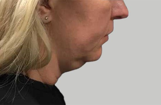 side of face before CoolSculpting