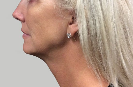 woman's chin after ultherapy