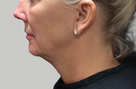 woman's chin before ultherapy